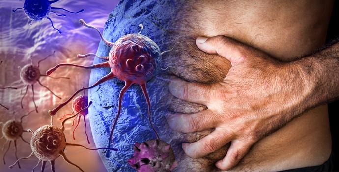 Comment éviter un cancer de l'estomac?