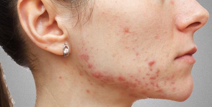 Transpiration : Méfiez-vous des gros pores