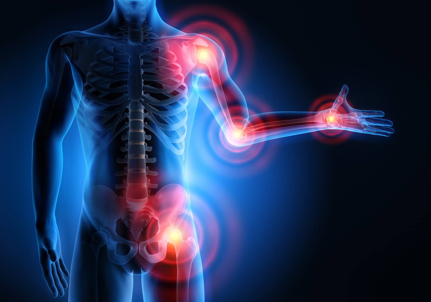 Détails importants que vous devez savoir sur l'arthrose
