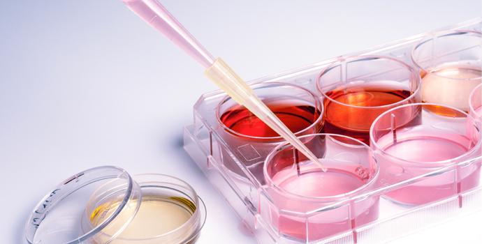 Que faut-il penser des cellules souches?