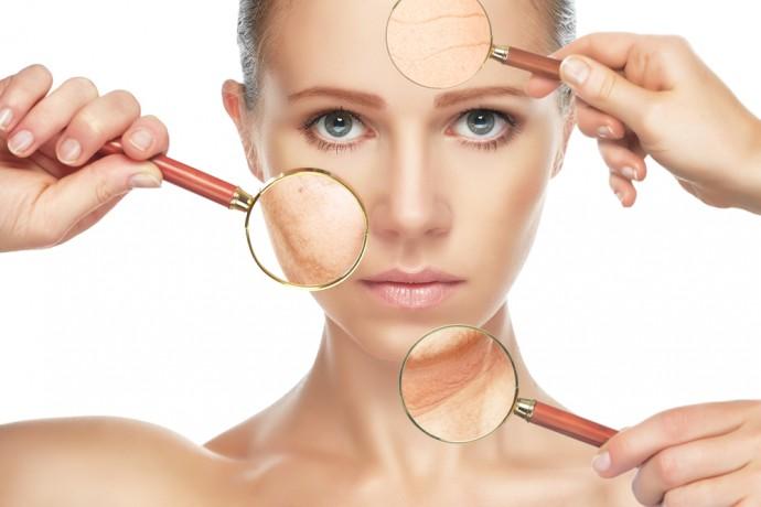 Gluten et lactose: craquage et acné