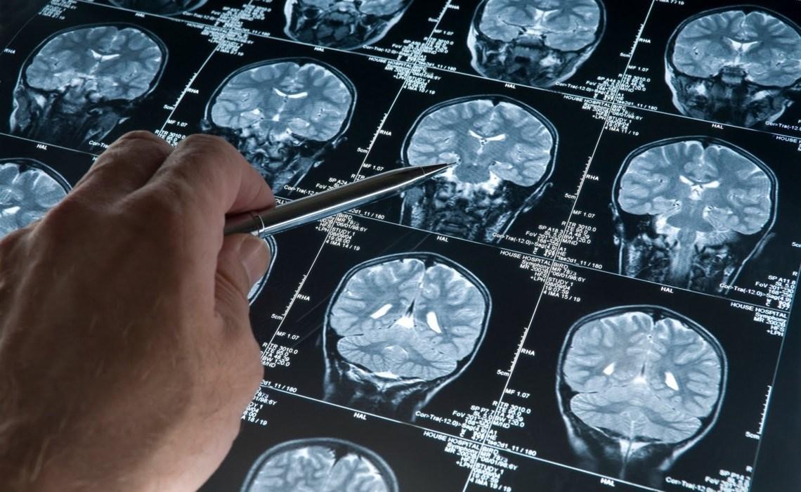 Un neuroscientifique montre ce que le jeûne fait pour votre cerveau et pourquoi big pharma ne va pas l'étudier